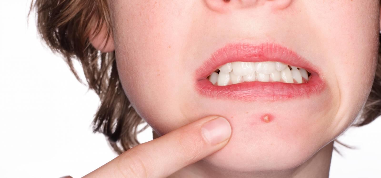 Léčba akné