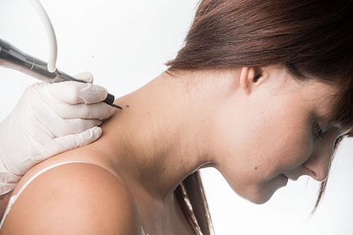 Odstranění kožních útvarů